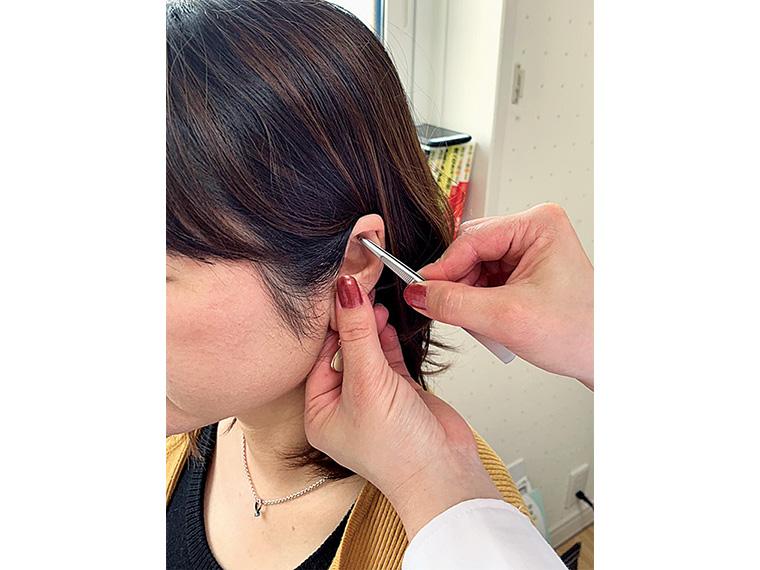 耳の6つのツボを刺激することで食欲抑制を促してくれる