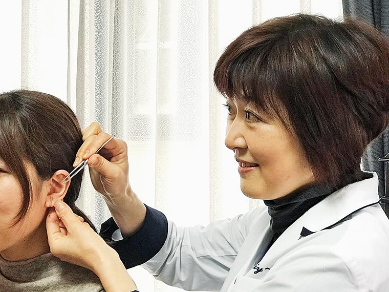 耳つぼダイエットの施術の様子。1回の施術は15分から20分